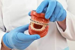 Orthodontist in Melbourne