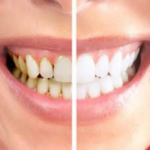 Teeth Cleaning Dentist east Melbourne