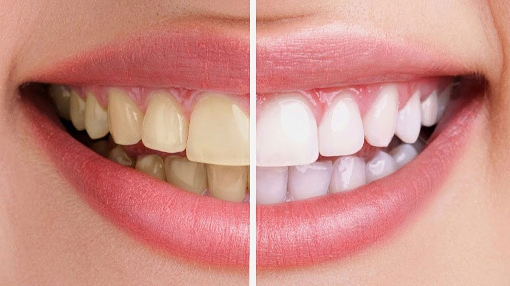 Teeth Whitening Dentist Collingwood