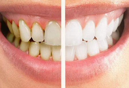 Teeth Whitening Collingwood