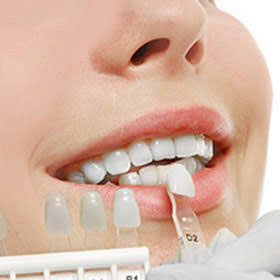 Veneers Dentist in Melbourne